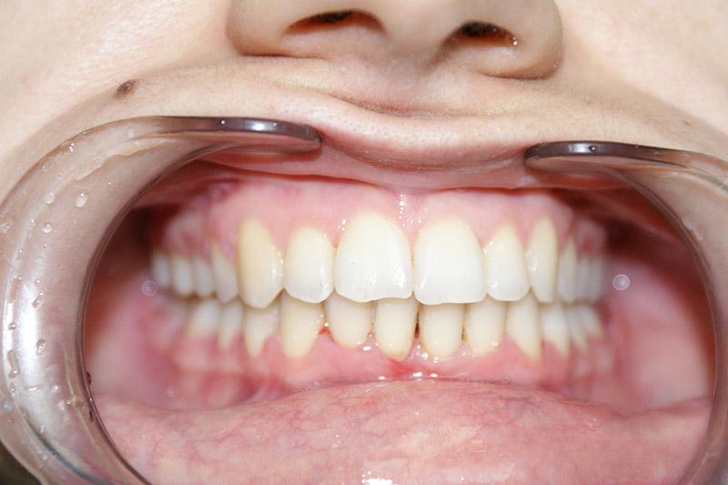 Протезирование зубов в майкопе цены